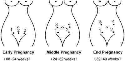 Máy nghe tim thai Fetal Doppler 100S6
